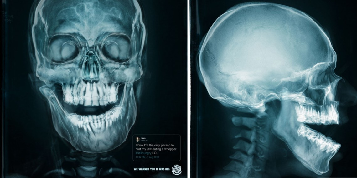 An X-ray of a jaw injured by eating a Whopper is shown.