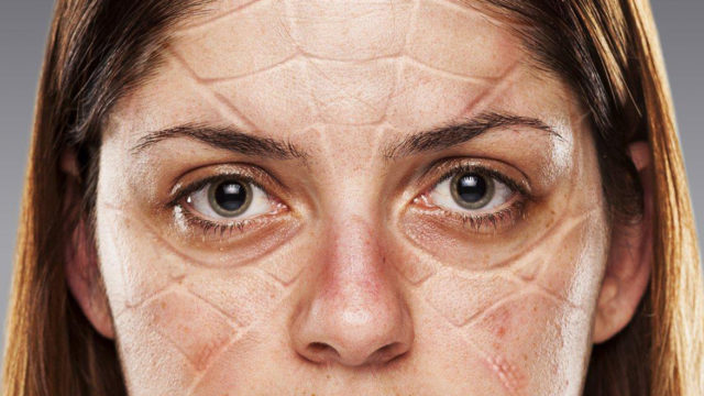 Woman with pressure marks on her face