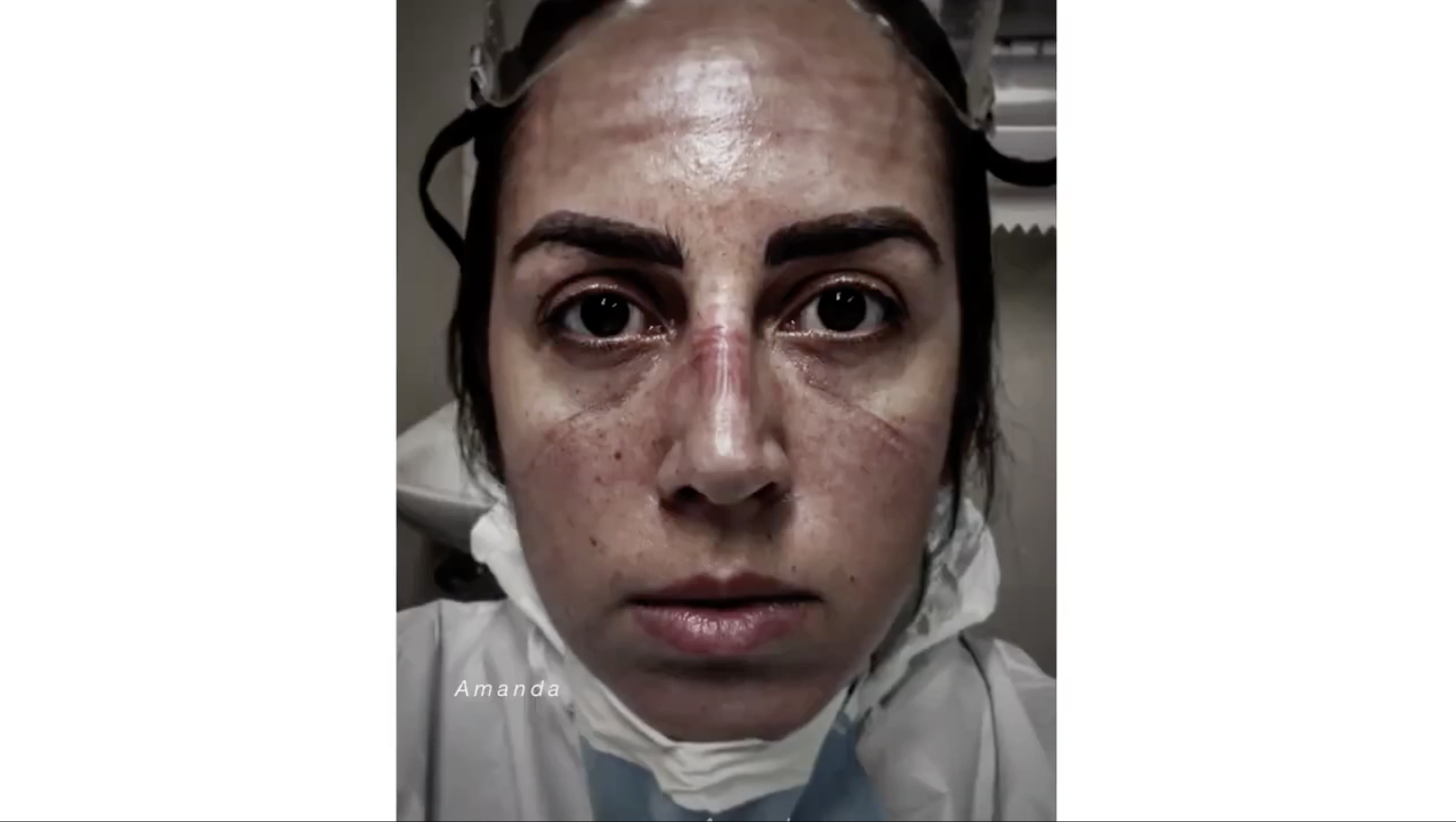 A closeup of a woman with PPE indents on her face.